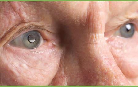 Telescopic-Implants-restore-vision