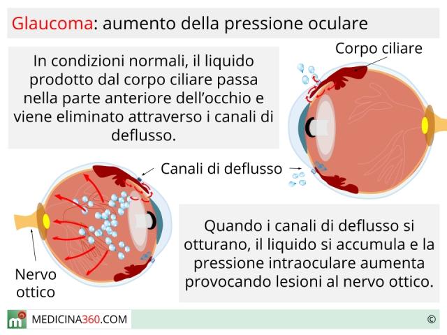 glaucoma_640x480