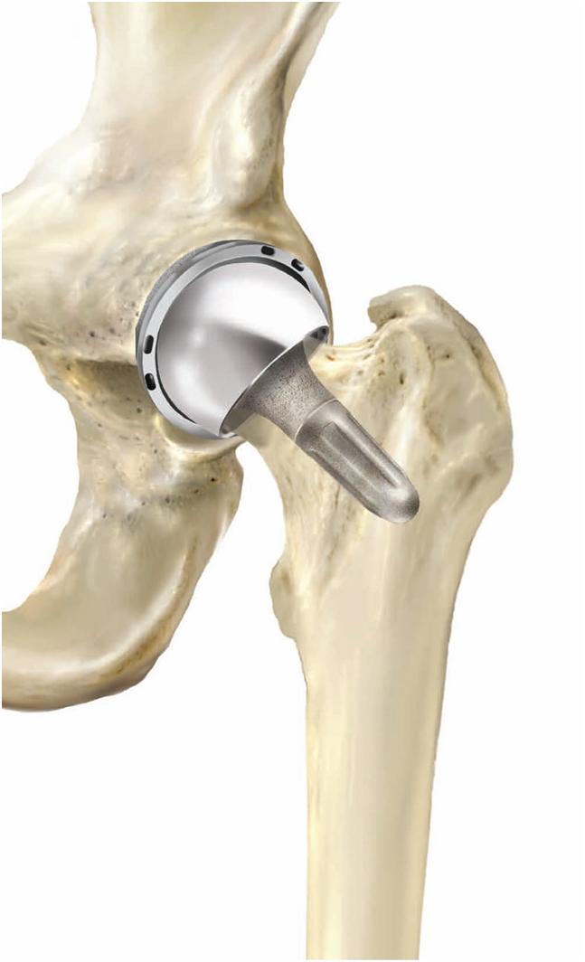 moroni-protesi3
